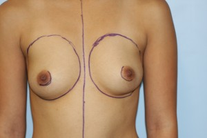 Front view before breast augmentation.