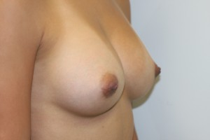 Half profile after breast augmentation.