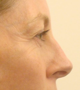 Crow-feet wrinkles after 2 weeks of daily applications of collagen-gel (pure collagen)